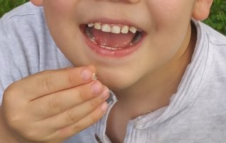 Diet for Tooth Decay. Heal Teeth Naturally and Reverse a Cavity