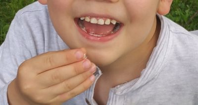diet for healing teeth naturally