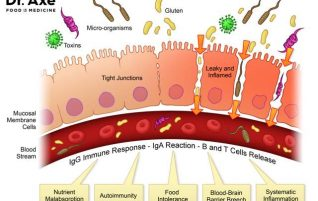 Healing Leaky Gut. Leaky gut Types. (part II)