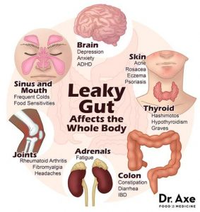 symptoms of leaky gut