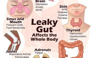Leaky Gut: Symptoms and Causes (part I)