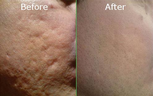 acne scars treatment methods